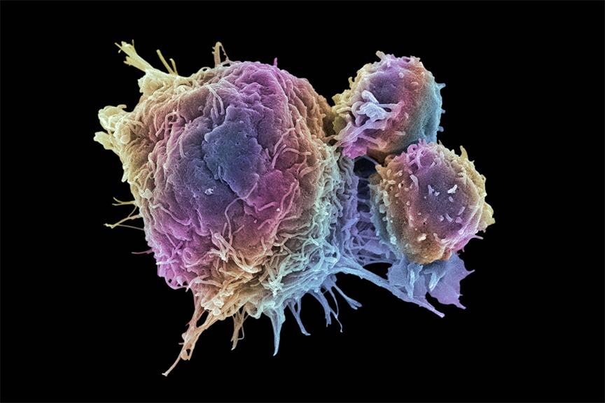 tế bào gây ra ung thư