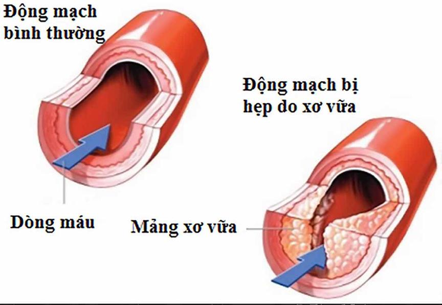 ăn hạt óc chó có tác dụng hỗ trợ ngăn ngừa bệnh xơ vữa động mạch