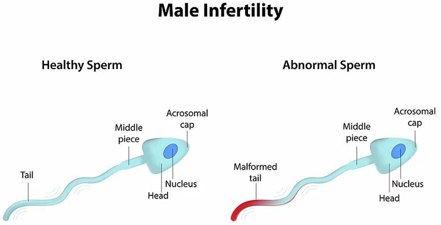 quả óc chó giúp cho tinh trùng khỏe mạnh hơn, sức khỏe sinh sản của nam giới tốt hơn
